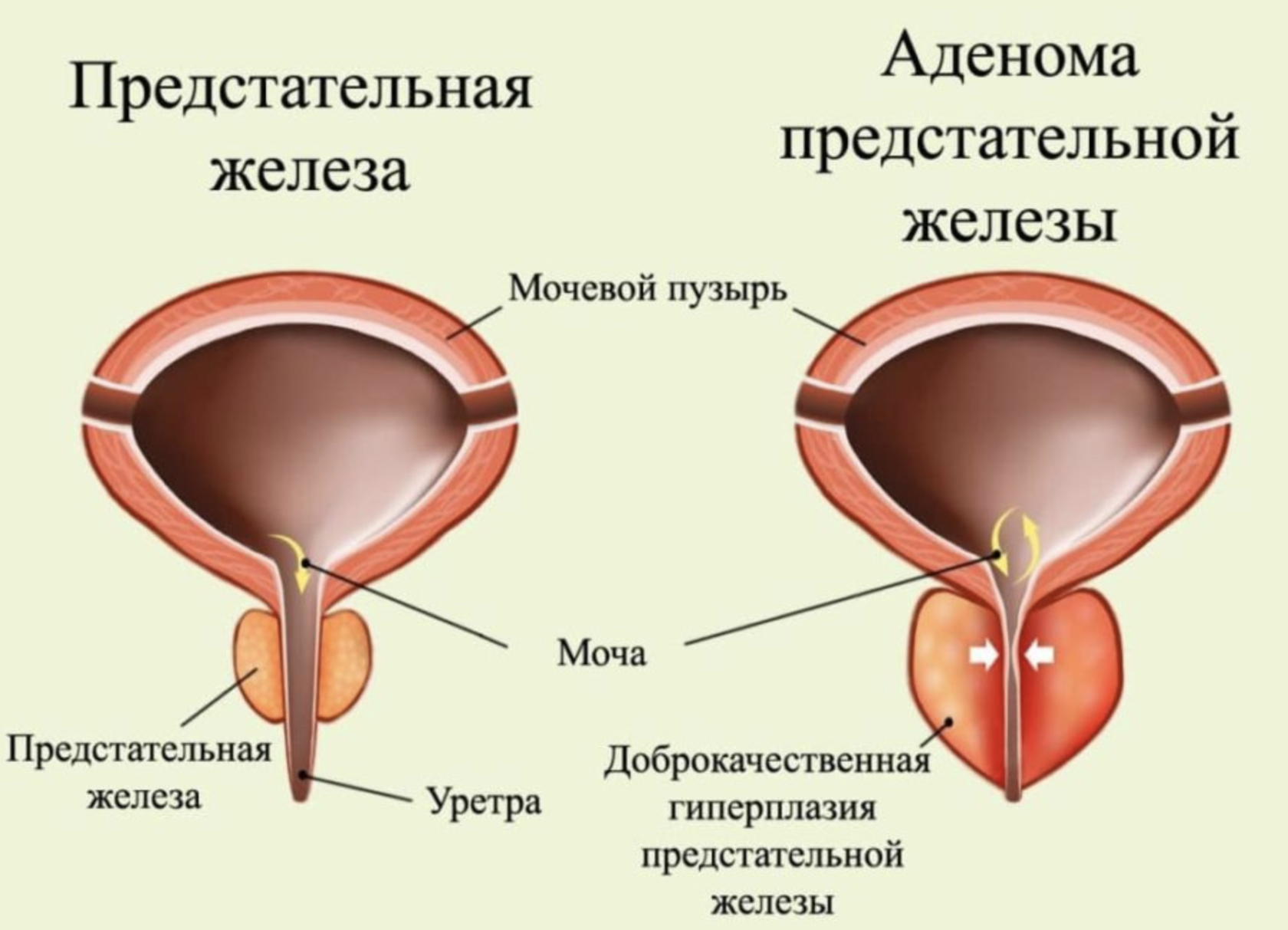 как вылечить простатит аденому