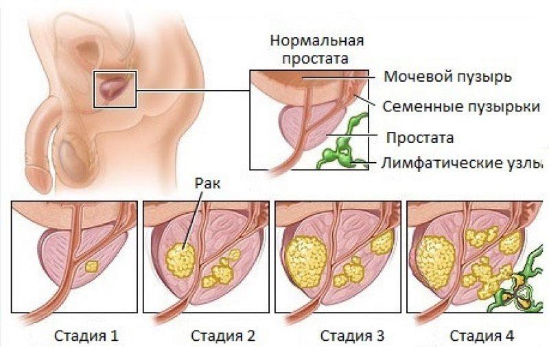 Начальная стадия лечения простатита трихопол как лечить простатит