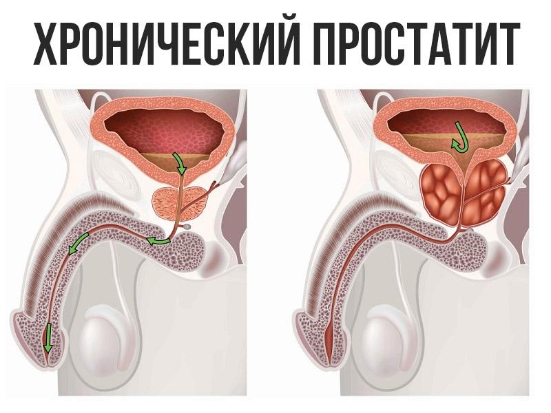 Что такое вирусный простатита может ли быть температура от простатита