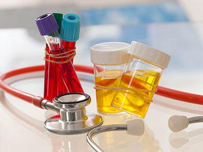 Частое мочеиспускание у мужчин без боли: причины позывов и лечение