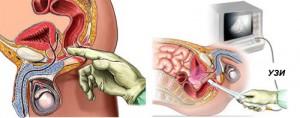 Диагностика воспаления простаты