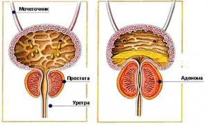 http://oncology.spb.ru/assets/cache/drlite/1396/thm_assets--images--otdeleniya--veteranov--Karlov_P_A_urologia_5--shema_png-300_.png