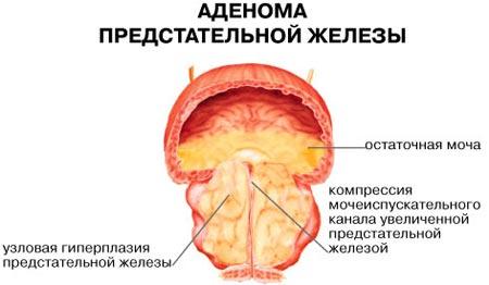 http://simptomy-i-lechenie.net/wp-content/uploads/2018/02/adenoma-predstatelnoy-zhelezyi.jpg