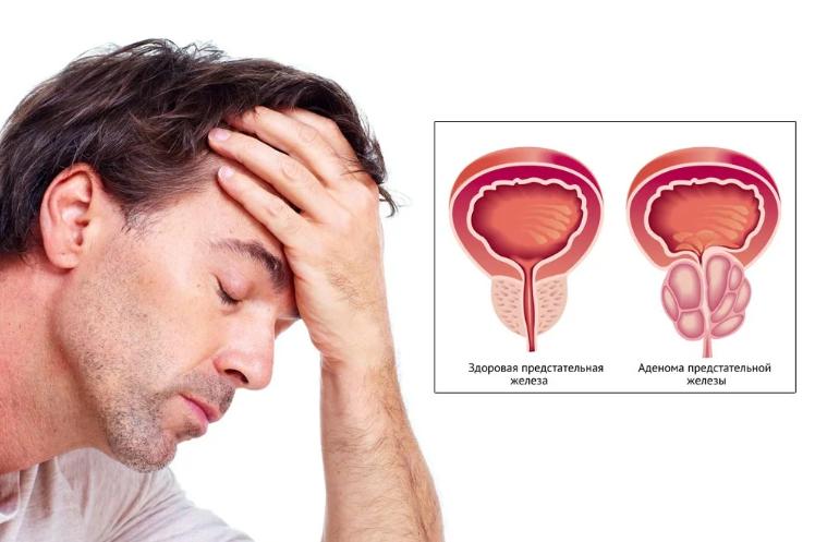 https://dezir-clinic.ru/upload/blog/prostatit2.png