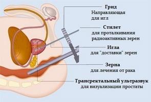 https://i0.wp.com/kaklechitprostatit.ru/wp-content/uploads/2016/10/prostatit-451.jpg