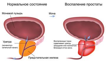https://medi.spb.ru/assets/pics/1979/1982-60.jpg