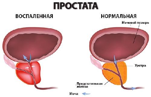 https://p-87.ru/wp-content/uploads/2018/06/Prostatit-foto.jpg
