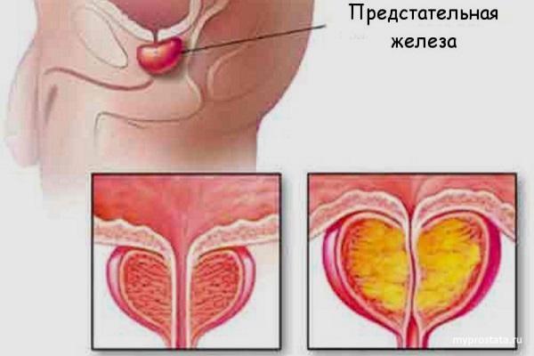 https://smartprost.ru/wp-content/uploads/2019/07/prostatit-24.jpg