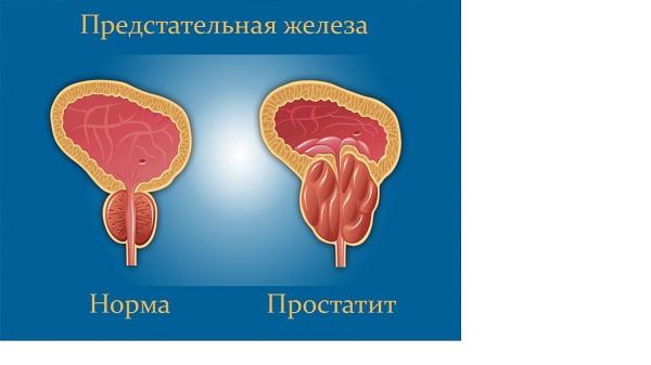 https://smartprost.ru/wp-content/uploads/2019/07/prostatit-25.jpg