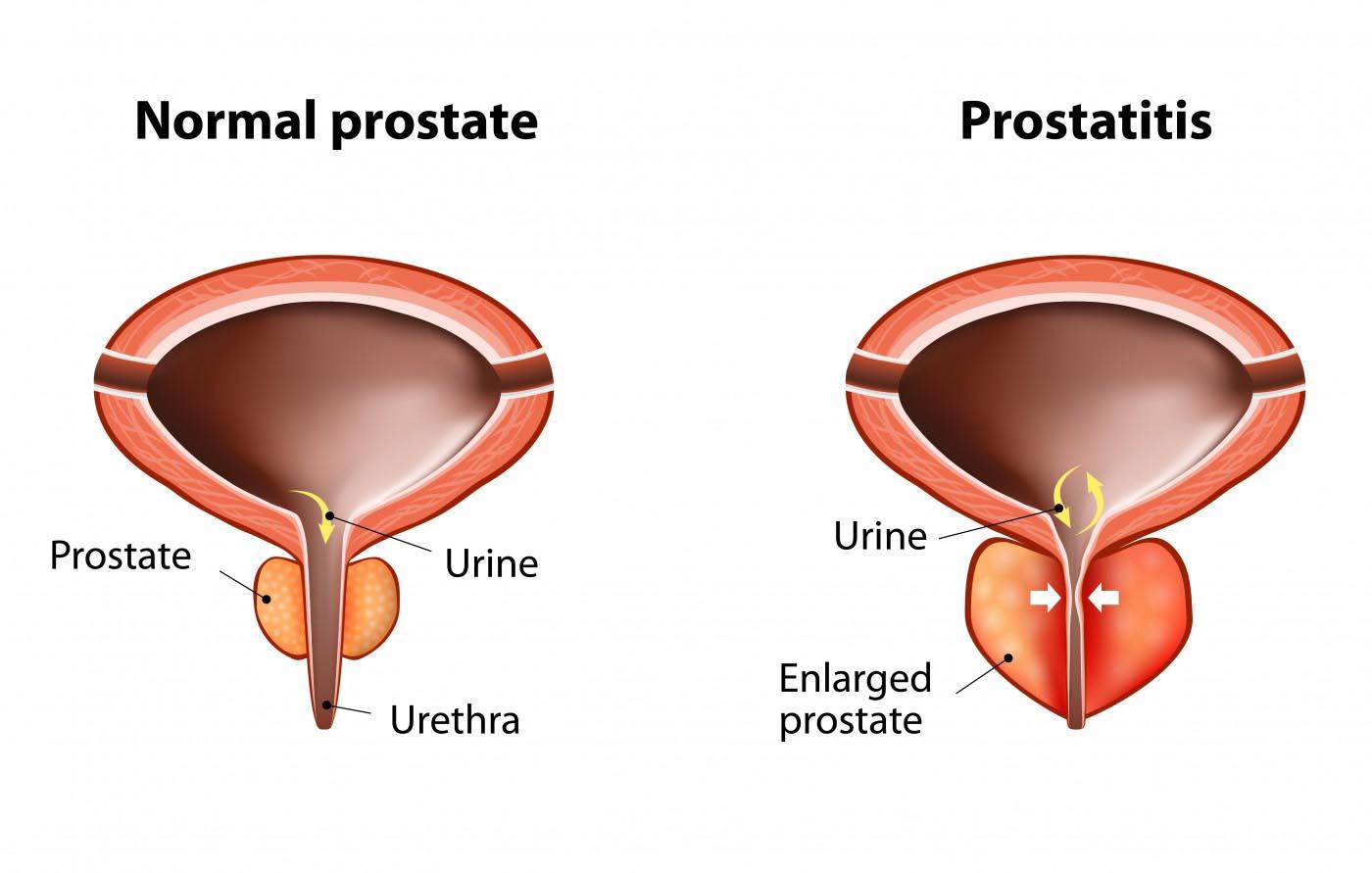 https://www.mzk.ru/userfiles/images/prostatitis.jpg