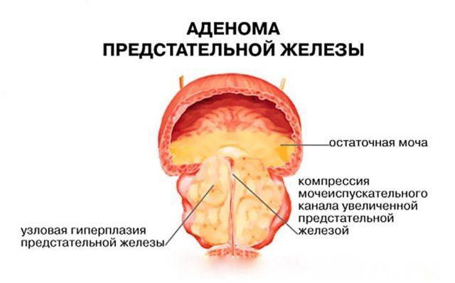 Камни в простате: симптомы и лечение калькулезного простатита