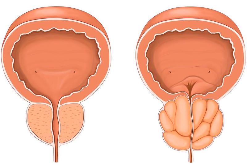 Лечение аденомы простаты-2