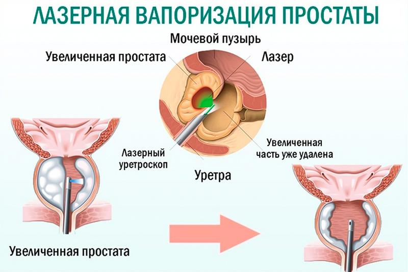 Лечение аденомы простаты-3