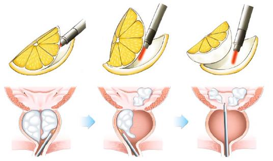 Лечение аденомы простаты-4