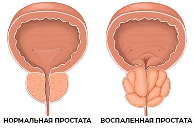Лечение простатита и аденомы простаты в УРО-ПРО