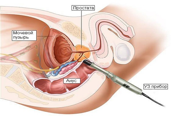Лечение простатита лазером: эффективность, противопоказания, показания