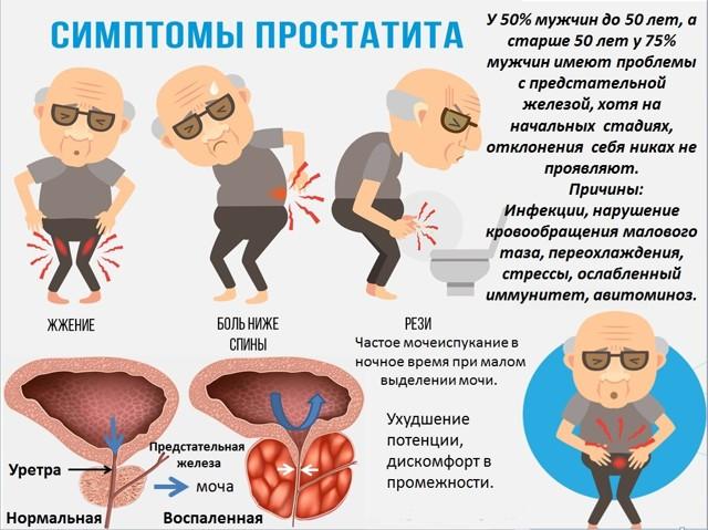 Лечение простатита народными средствами: подборка лучших методов