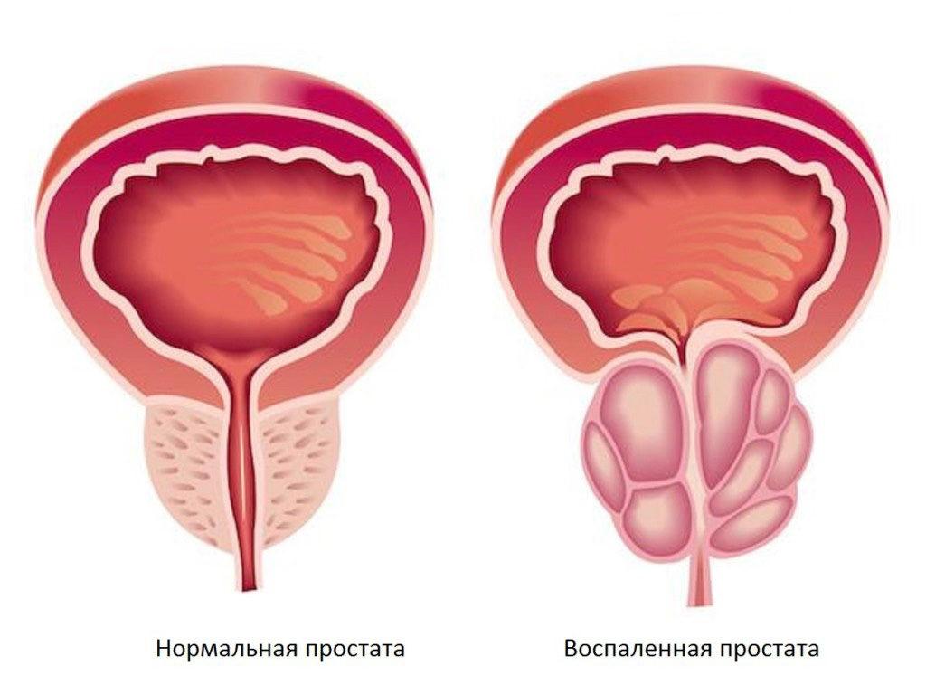 Лечение простатита в Москве