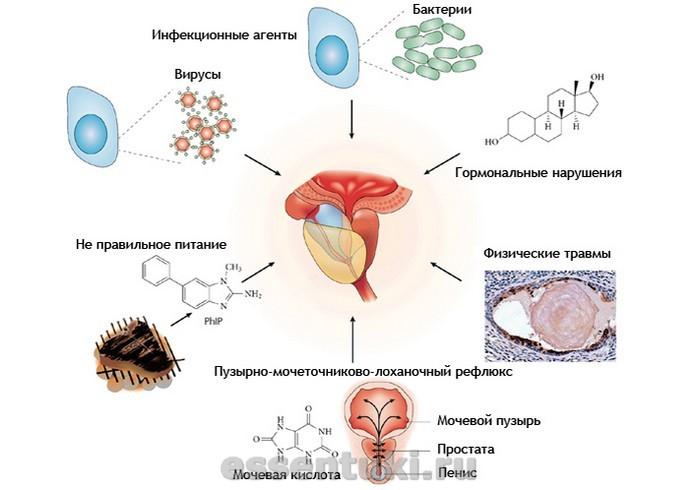 Причины возникновения урологических заболеваний