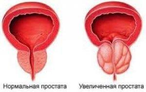 Простата: норма и увеличенная