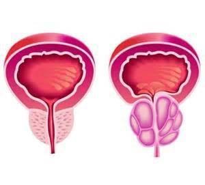 Простатит застойный у мужчин и когнитивный: лечение, причины и симптомы