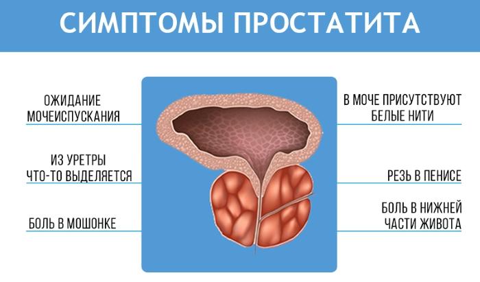 Симптомы простатита. Записаться на приём к урологу.