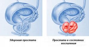 Сравнение здоровой и воспаленной простаты