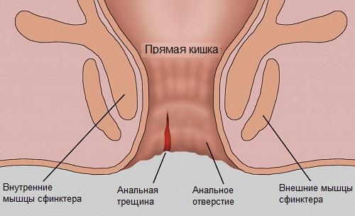Трещины ануса