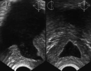 ТРУЗИ предстательной железы: полость предпузыря, сообщающаяся с мочевым пузырем