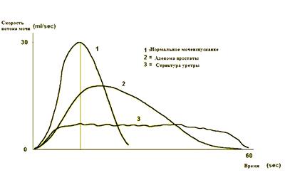 Урофлоуметрия. Исследования в клинике УРО-ПРО